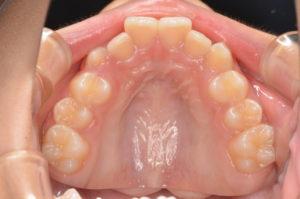 インビザライン治療症例報告(治療前上顎)