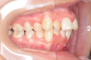 20代患者への矯正の症例報告(治療前下顎)