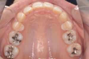 セラミックブラケット装置治療治療後上顎