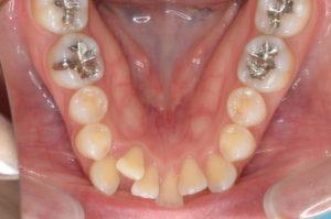 セラミックブラケット装置治療初診時下顎